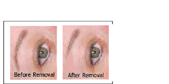PIGMENT REMOVAL SOLUTION